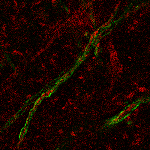 Myelinated_interneuron.png